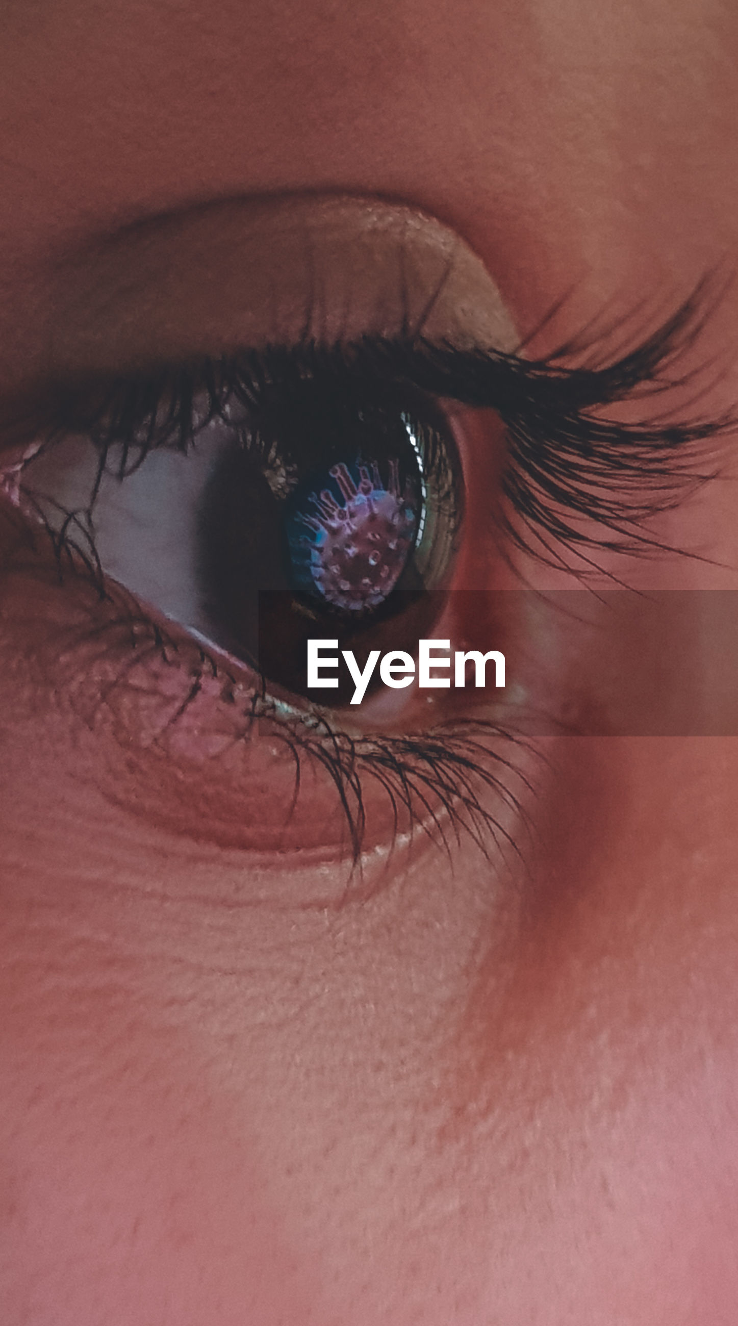 CLOSE-UP OF HUMAN EYE WITH RED FACE