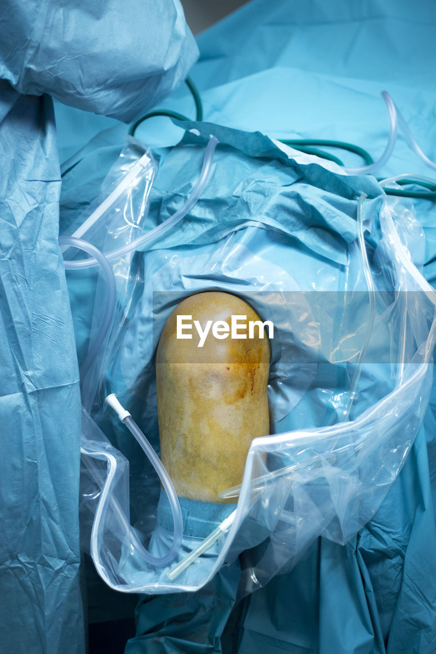 plastic, food and drink, food, still life, healthy eating, healthcare and medicine, bag, close-up, indoors, plastic bag, high angle view, no people, fruit, day, freshness, security, transparent, polythene
