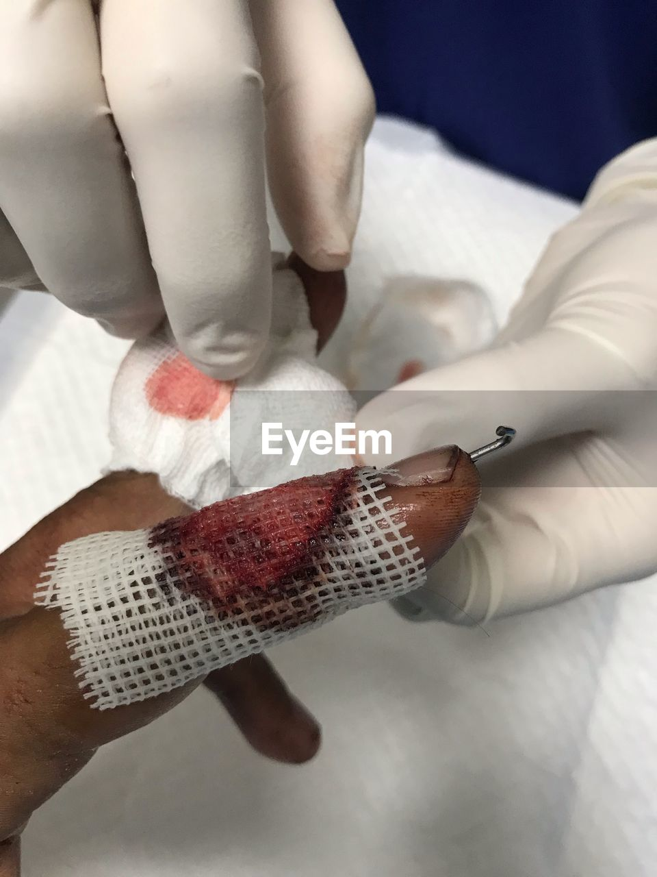 Cropped image of doctor wrapping patient wounded finger in hospital