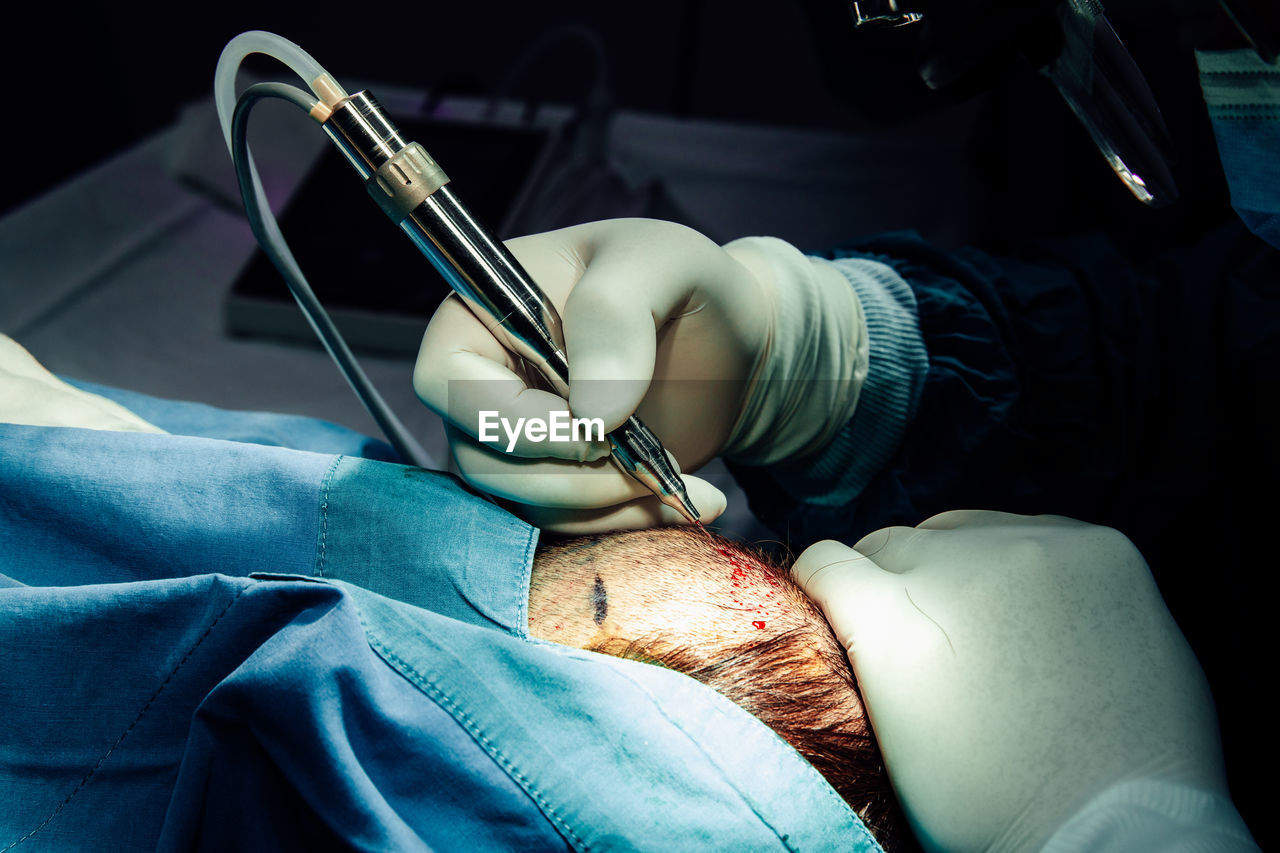Close up hand of surgeon with surgical equipment making surgery hair transplant on head