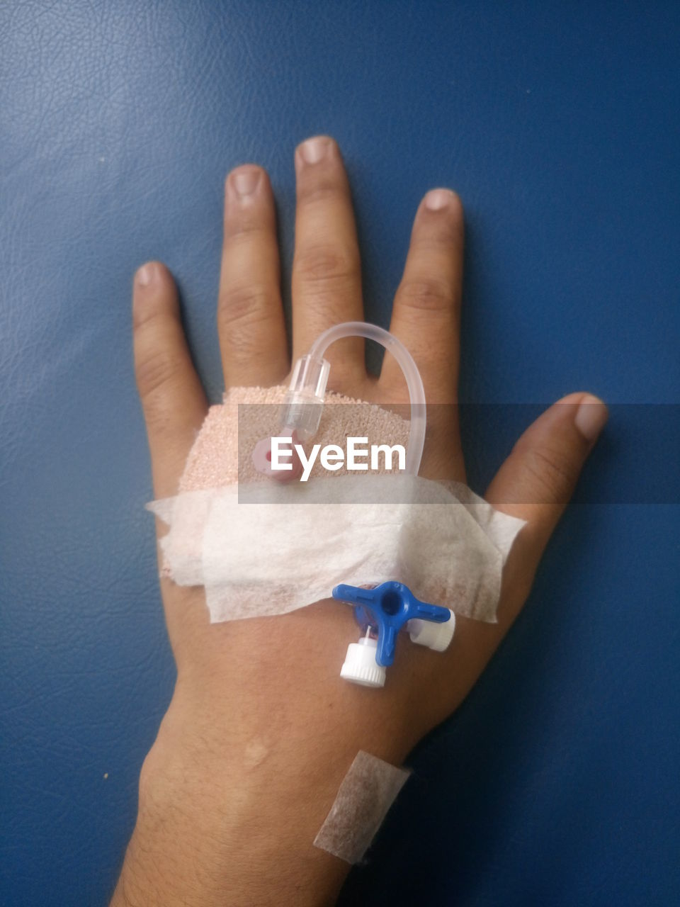 Cropped Hand With Iv Drip On Bed In Hospital