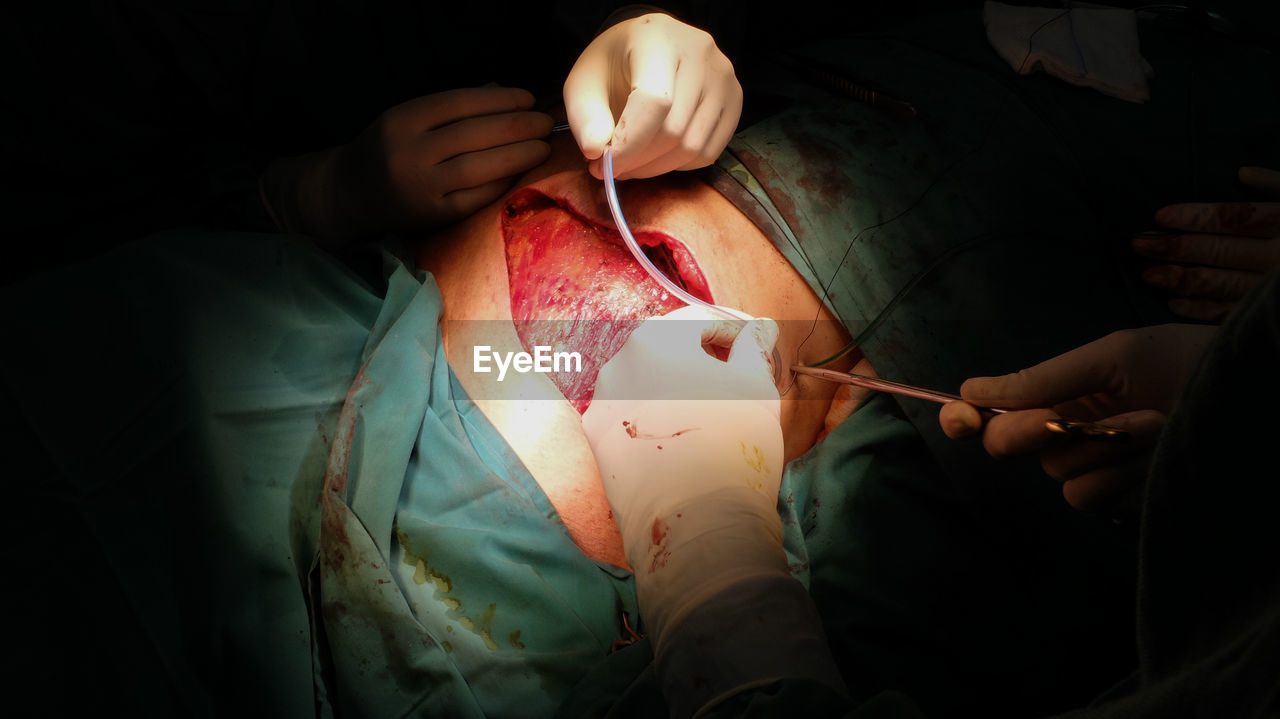 hospital, human body part, surgical glove, healthcare and medicine, human hand, surgery, operating room, adult, indoors, patient, occupation, people, expertise, surgeon, doctor, hand, emergency room, medical equipment, surgical equipment, real people, medical procedure, care