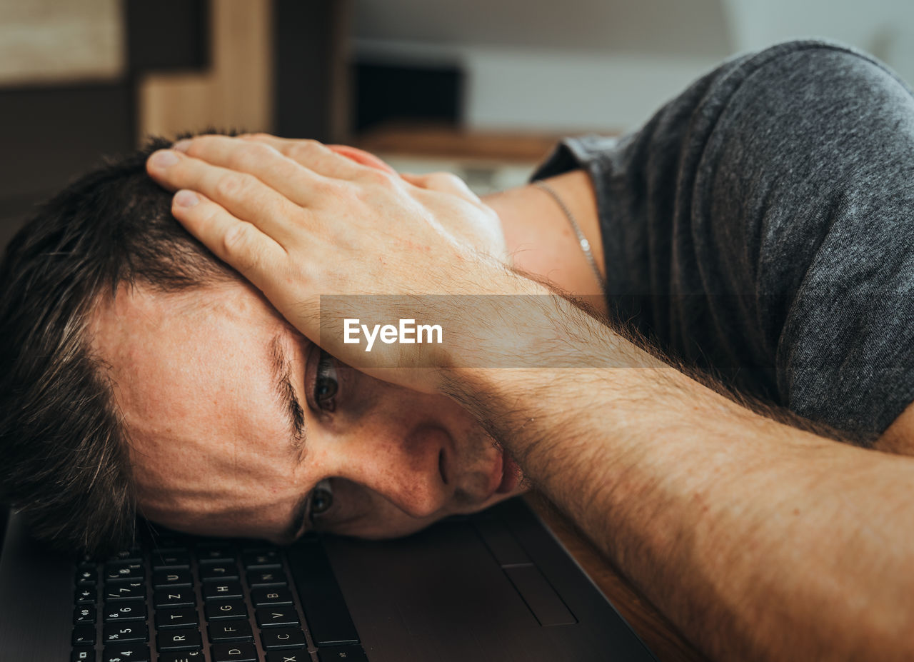 Man lies stressed in home office with head on laptop and has burnout due to high workload at work