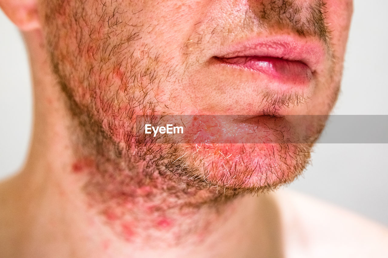 Midsection of man with beard infection against gray background
