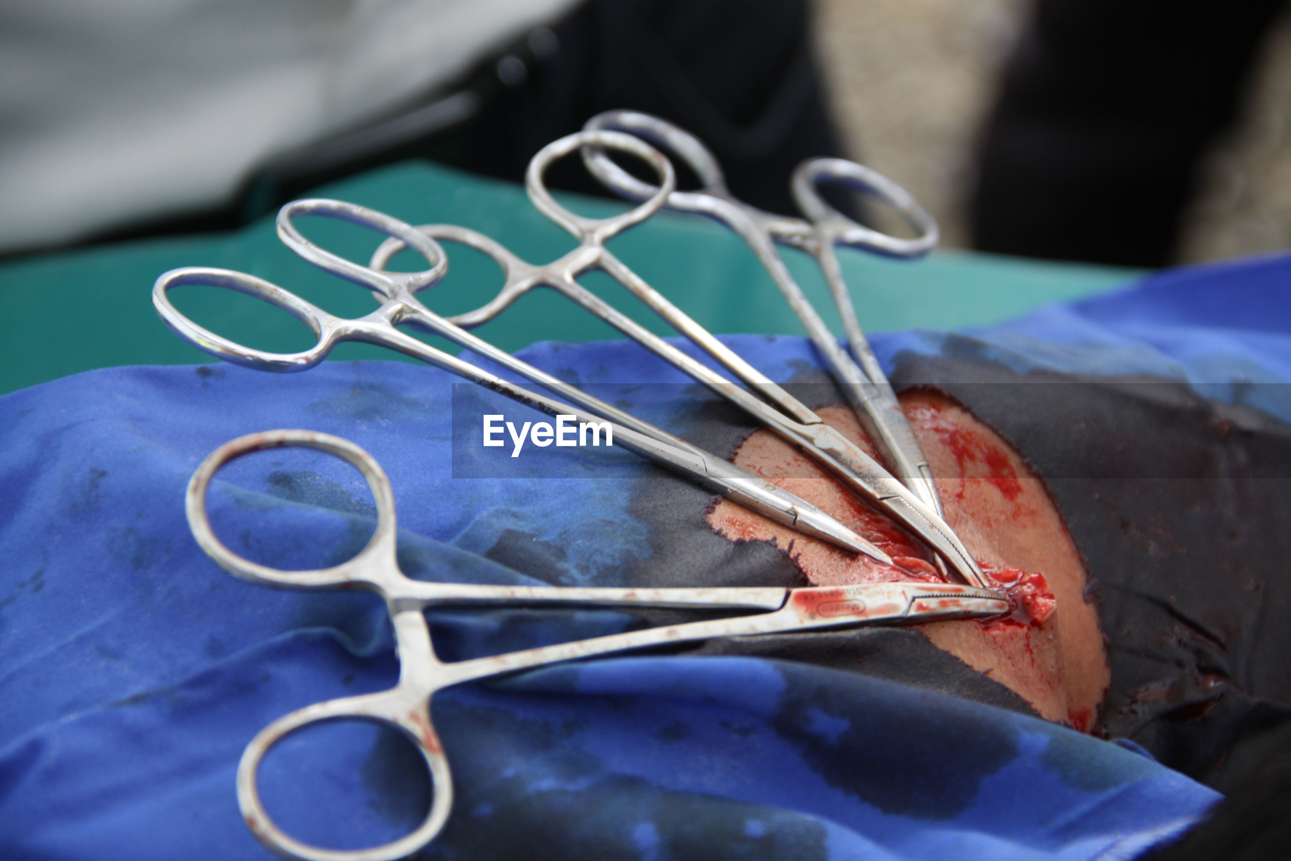 Close-up of scissors on patient body at hospital