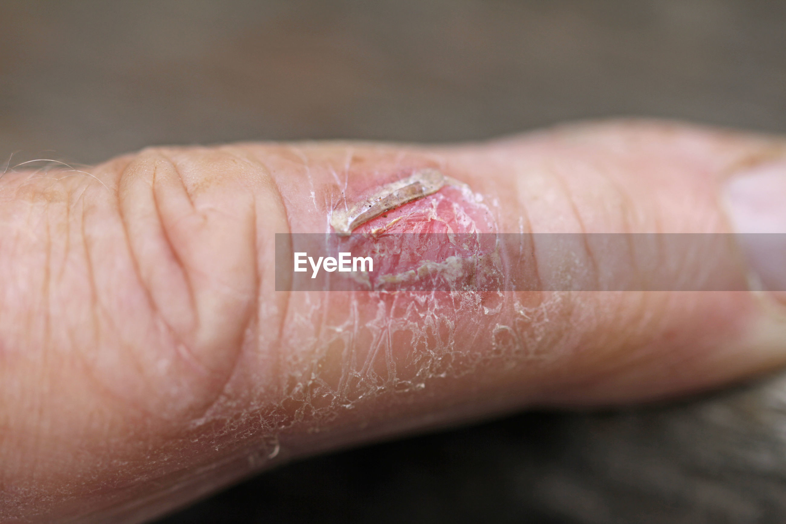 Close-up of wound on hand