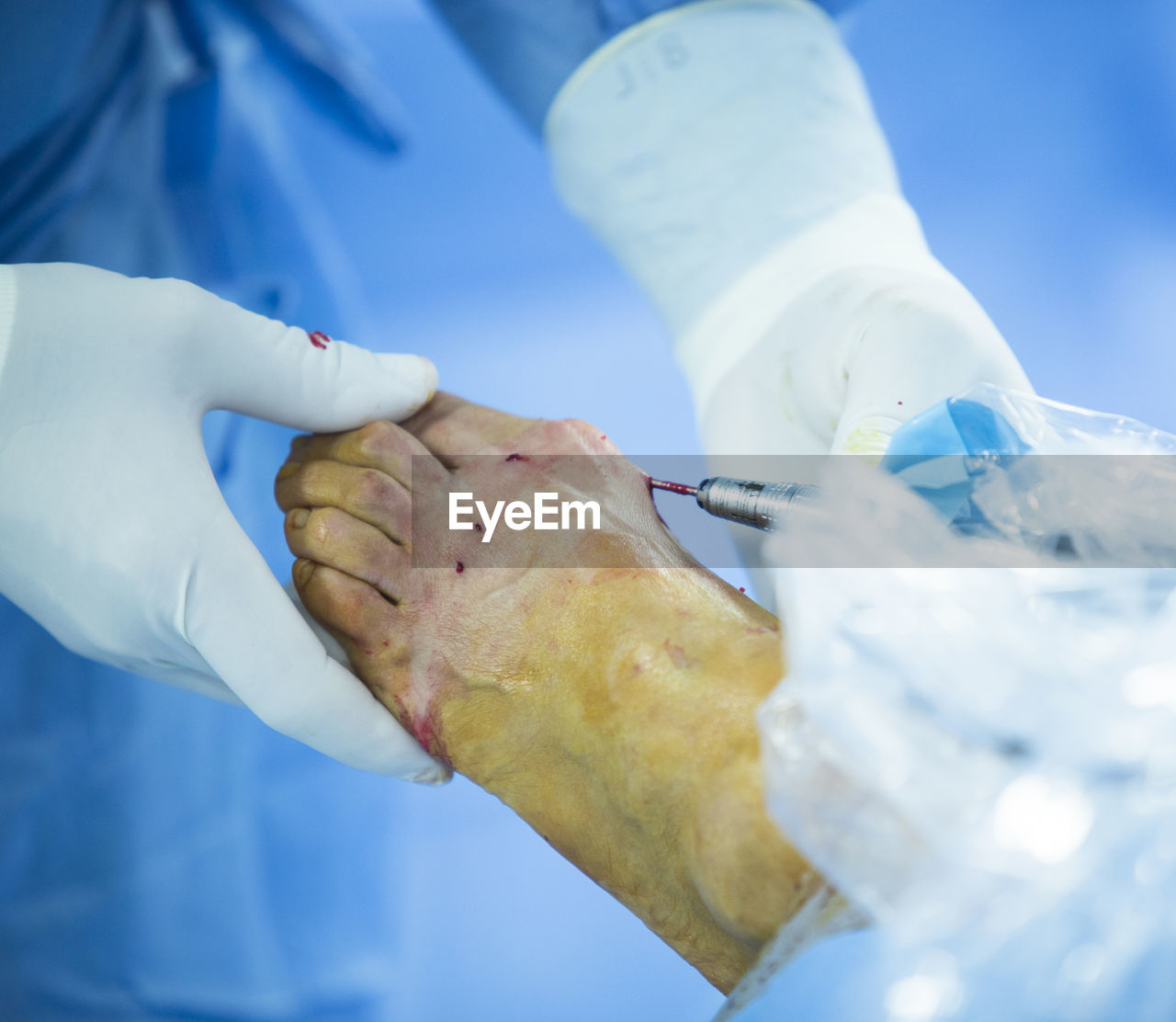 human hand, hand, occupation, human body part, doctor, healthcare and medicine, real people, hospital, surgical glove, two people, adult, holding, people, care, skill, patient, protective glove, surgeon, women, unrecognizable person, healthcare worker, iv drip, responsibility
