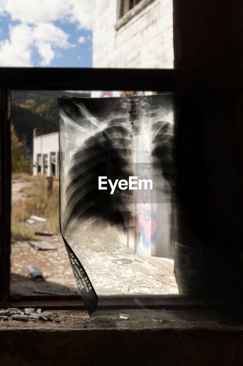 Chest x-ray on window