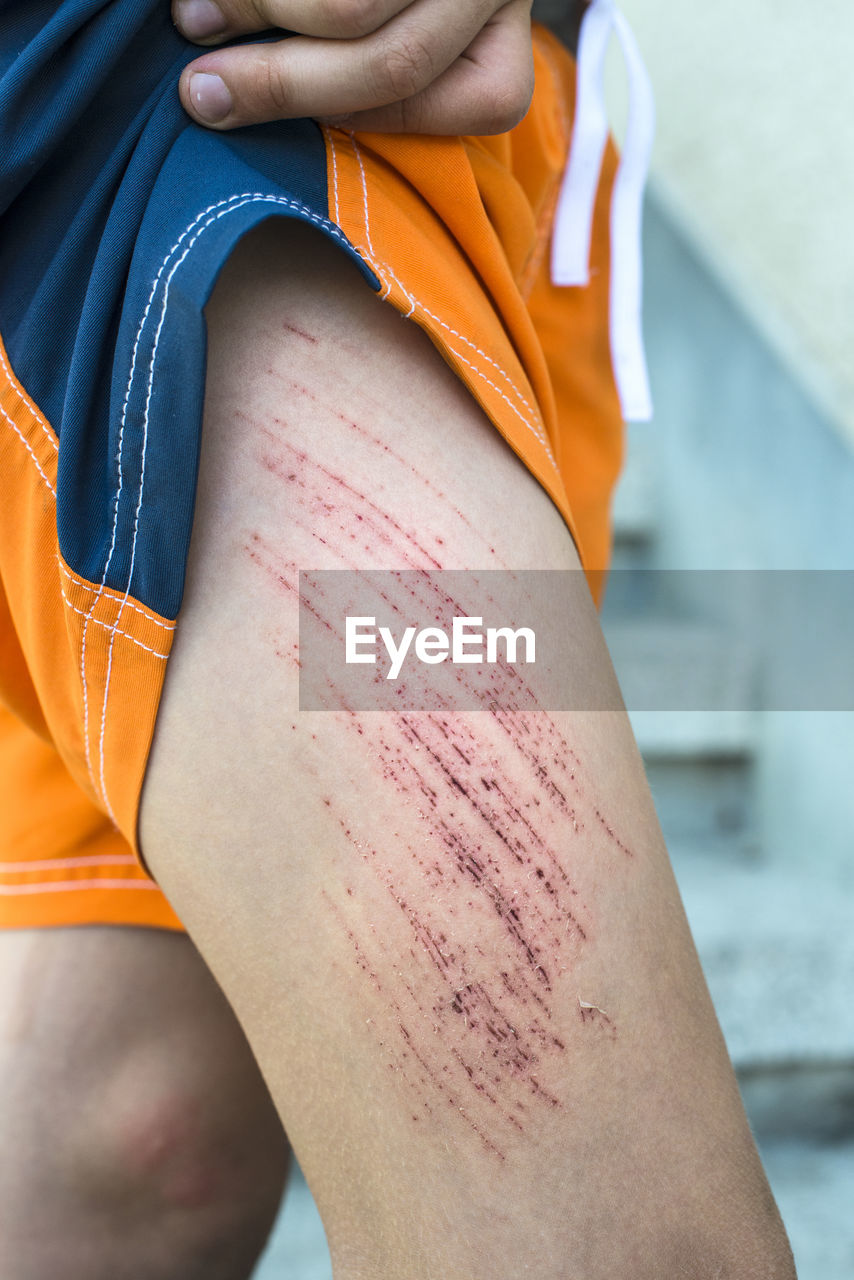 Midsection Of Person With Injury On Thigh