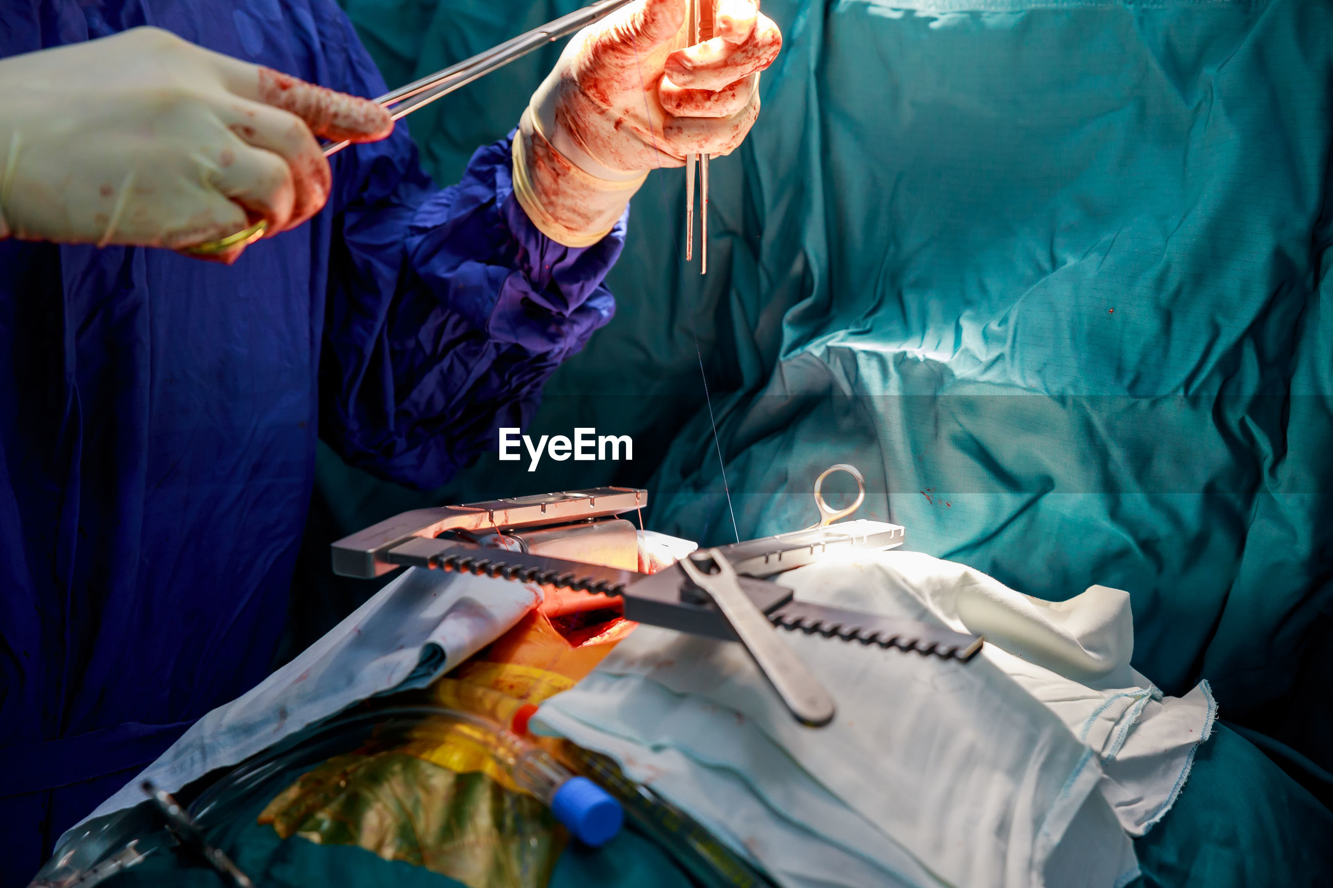 Midsection of doctor doing surgery of patient