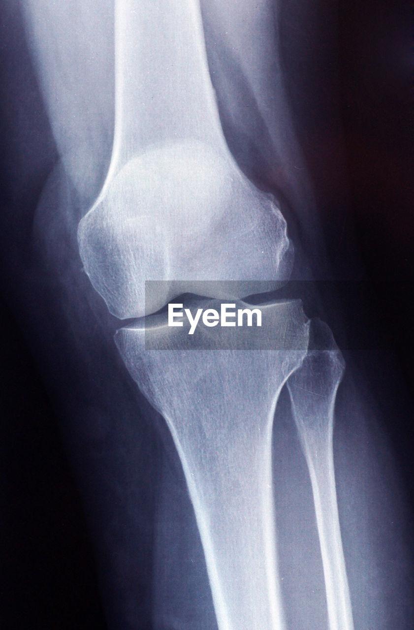 Full Frame Shot Of Medical X-Ray