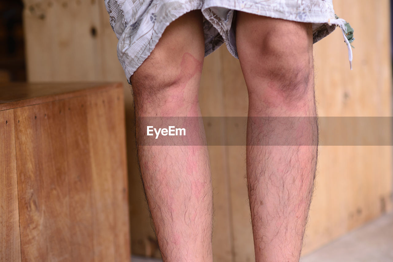 Close-up of allergy on legs