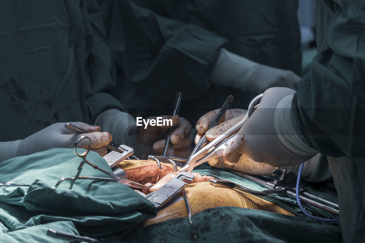 Midsection of doctors operating patient