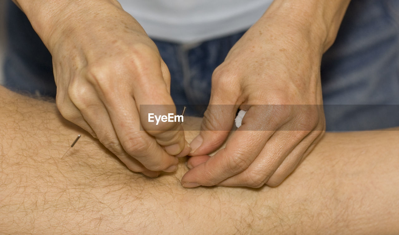 Cropped Image Of Hand Applying Acupuncture Needle On Skin