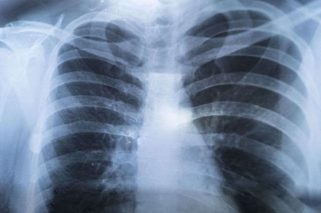 X-ray Image Diagnostic Medical Tool Human Skeleton Tomography Medical X-ray Cancer - Illness Human Internal Organ Anatomy Human Brain Medical Building Radiologist Mri Scan Human Skull Fracture Skull Bone  Human Bone Foggy