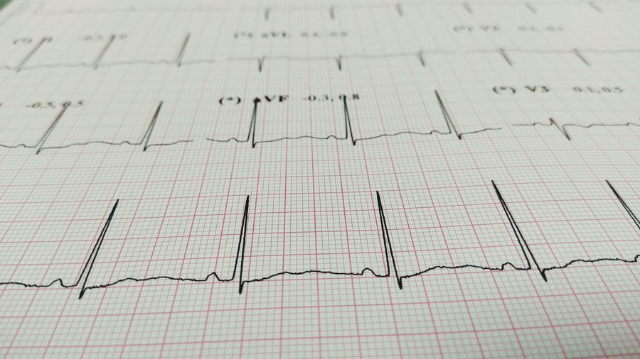 Full frame shot of ecg report