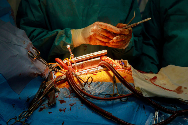 Midsection of surgeon operating patient in hospital