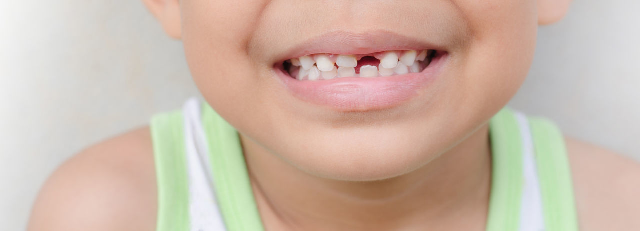 Close-up of boy with broken tooth