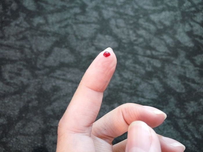 Cropped Image Of Wound Fingers