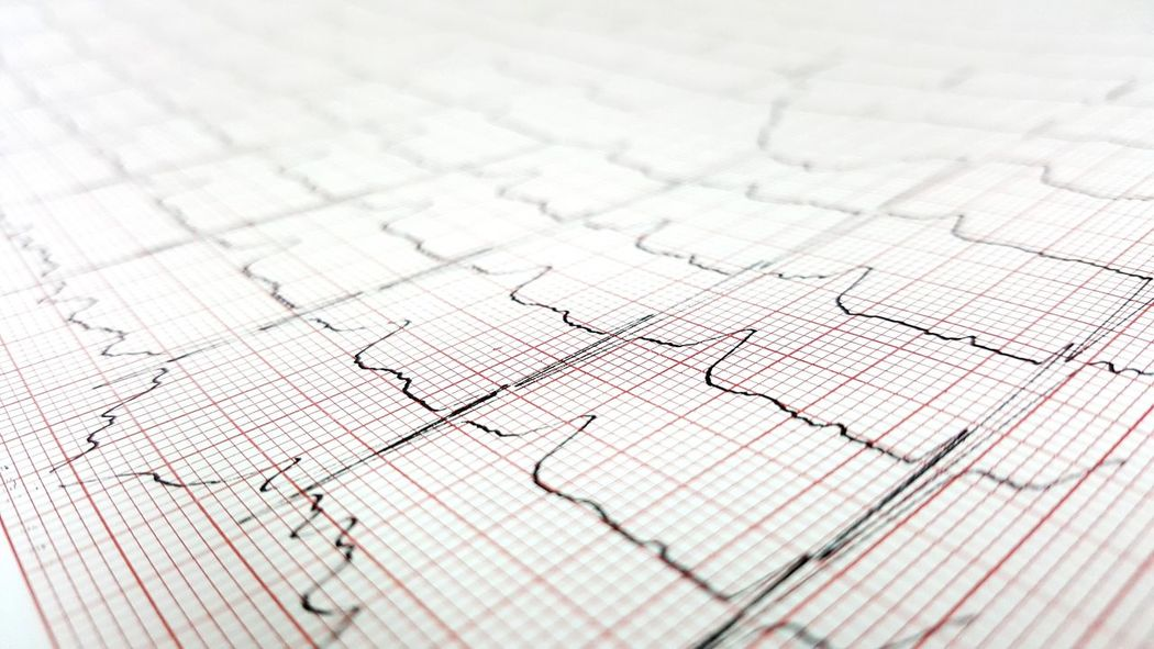 life Heart Beat Rhythm ECG Life Hospital Patient Chart Paper Graph Diagram Backgrounds Research Technology EyeEmNewHere AI Now