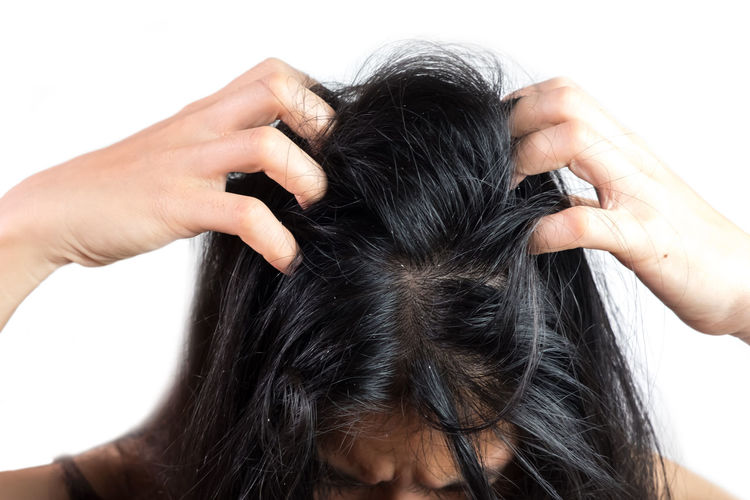 women head with dandruff Caused by the problem of dirty. Or caused by skin disease or Seborrheic Dermatitis. It has white scaly and it will cause itch. Dandruff HEAD Head And Shoulders Hair Scalp Psoriasis White Background Young Adult Females Seborrhea People person Health Care Skin Dirty Sickness Scaly Discomfort Woman Girl Greasy Through Caucasian Shampoo Medical Dry Stress Problem Backgrounds Itch Black Human Body Part Hand Illness Disease Flakes Medication Trouble Fungus Misfortune Hormonal Secretions Annoying Sebum Magnifying  Scratch Rod Human Hair Black Hair