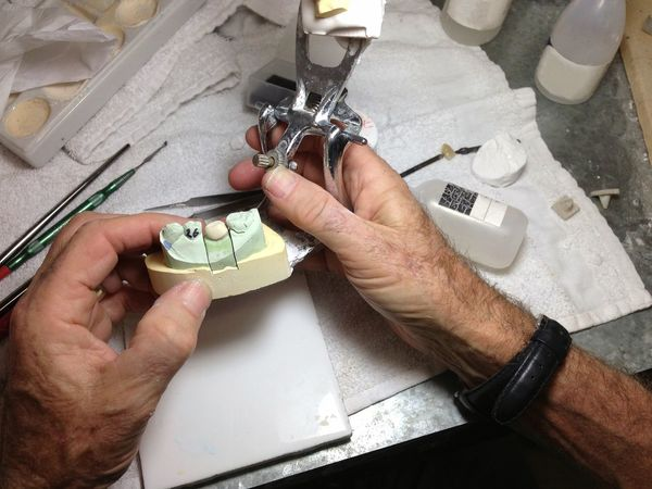 A dental technician at work making teeth at a dental lab. Teeth Work Hands At Work Technician Working Occupations Jobs Dentistry Men At Work  Hands A Bird's Eye View Two Is Better Than One Handmade For You