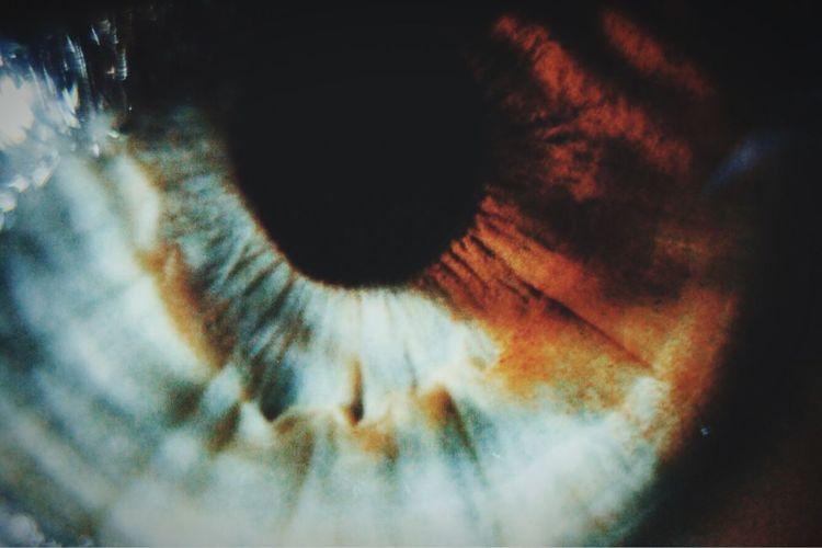 """""""My eye"""" Eye"""