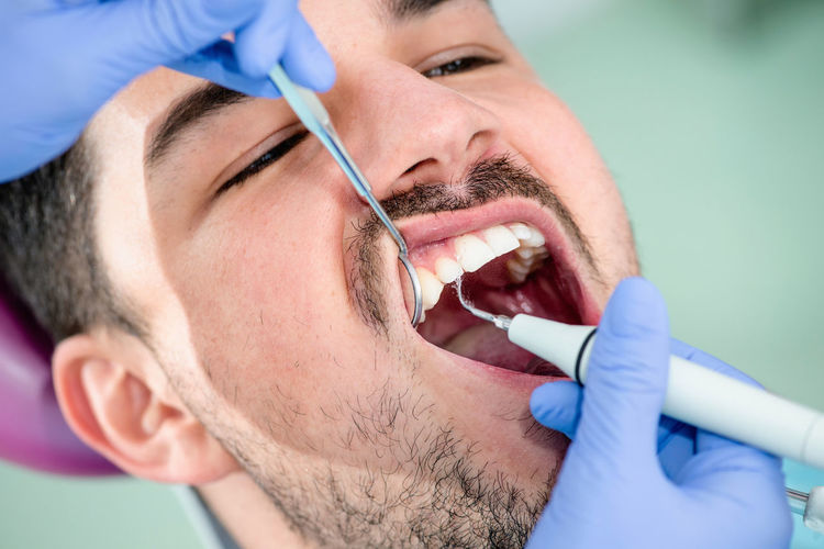 Plaque Removal, Dental Care Professional Occupation Care Cleaning Dental Hygiene Dental Calculus Dental Cosmetic Dentist Doctor  Healthcare And Medicine; Close-up Dental Equipment Dental Health Dentist Office  Facial Hair Human Mouth Human Teeth Male Beauty Open Plaque Procedure Remover Splashing Surgical Glove Water Young Male