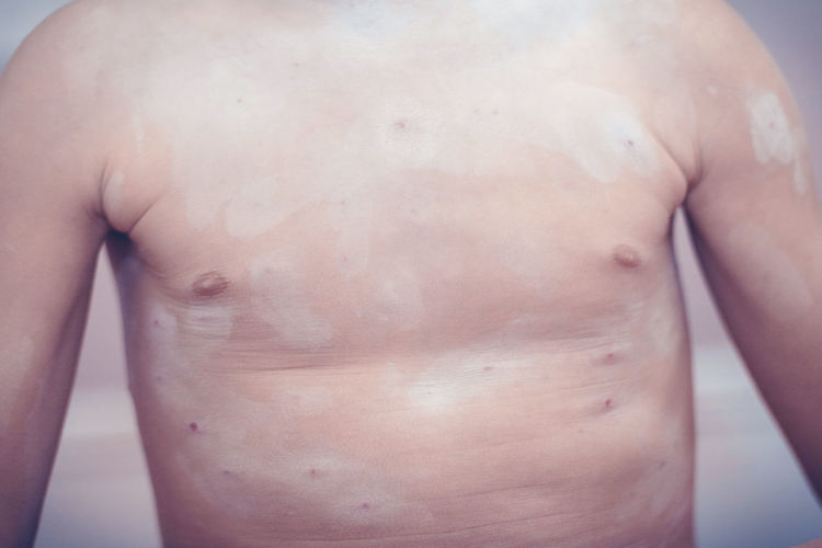 Midsection of shirtless boy with chickenpox