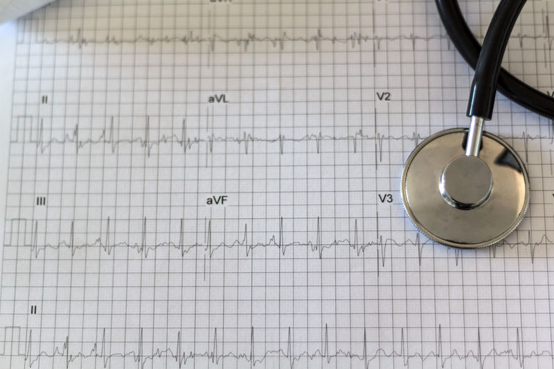 Close-up of stethoscope on pulse trace