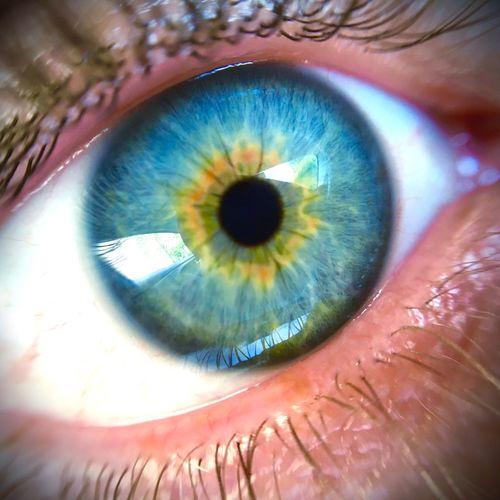 Colour Of Life Yeux Bleus Oeil EyeEm Eye Macro Jaune🌻 ShotOnIphone