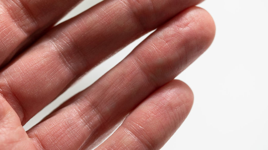 Human Hand Finger Human Finger Close-up Studio Shot Communication Reaching Out Pan Handling Phalange Human Skin Hand White Background Human Body Part 17.62°