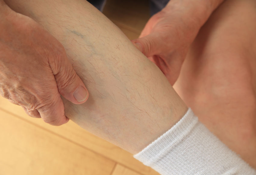 Sore calf muscle on older man Calf Muscle Close-up Complaint Condition Day Fingers Hands Healthcare And Medicine Human Body Part Human Skin Hurt Indoors  Injury Leg Medical Men Muscle Strain Pain Patient Real People Senior Man Sitting On Floor Sock Soreness