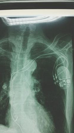 Une Radio thorax, Un défibrillateur implantable - Le pacemaker: Indiqué chez les patients qui présente des problèmes cardiaques: une tachycardie ventriculaire/fibrillation ventriculaire Medecine Xray X Ray Surgery Surgery Time Surgery Style. Surgeryroom Surgery Day .
