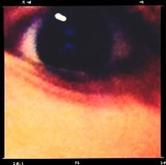 My eye Hanging Out First Eyeem Photo