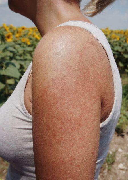 Irritation Allergy Allergic Rash Abdomen Rear View Mid Adult Close-up Shoulder Body Part Human Neck Human Skin Human Body
