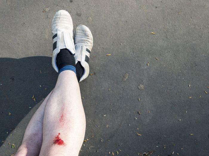 Close-up injured knee
