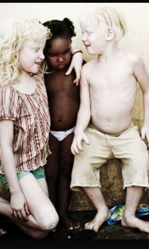 Stand Out From The Crowd Albinism Taking Photos Children Check This Out Art Elegance Everywhere
