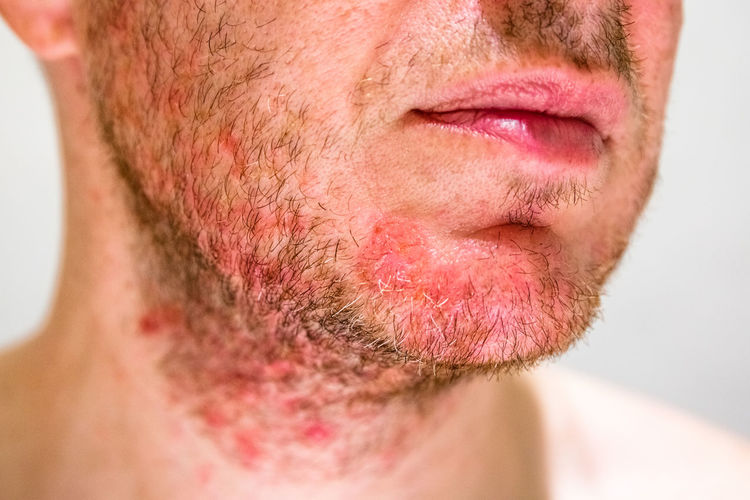 Horizontal Irritation Allergy Atopic Beard Chin Close-up Dermatitis Dermatological Dermatology Epidermis Face Human Body Part Human Face Infection Medical Men One Person Problem Rash Reaction Redness Seborrheic Skin Unrecognizable Person