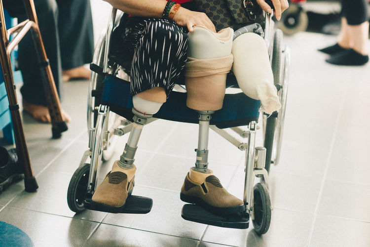 Low section of person with artificial limb on wheelchair