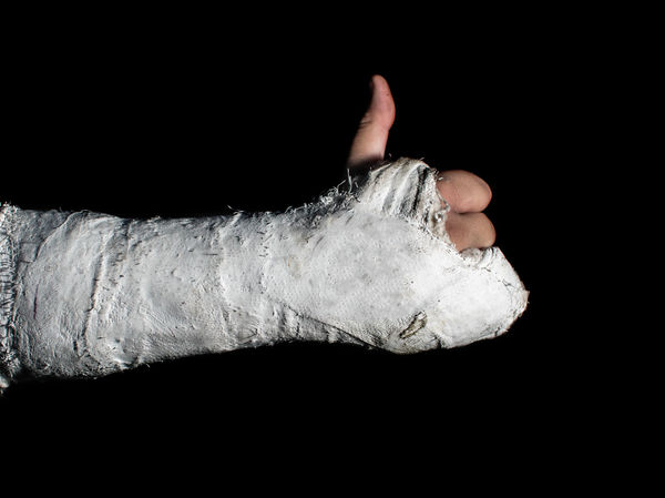 Man with a broken arm doing a thumbs up. Broken Bone CAST I'm Fine  Injured Arm Cast Black Background Body Part Cast Arm Finger Fracture Fractured Arm Hand Health Human Body Part Human Hand Injury Medical Men Okay One Person Studio Shot Thumbs Up