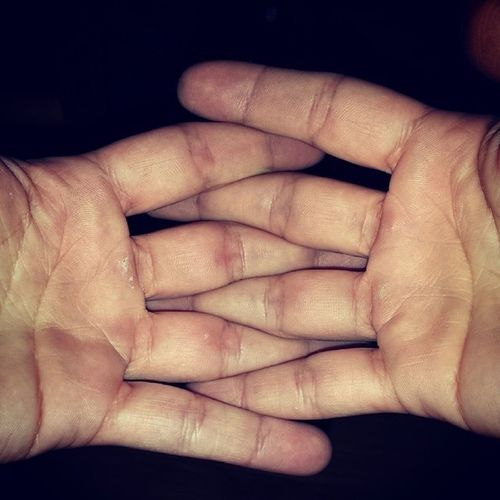 Calluses, they're so sexy. -_- lol Gymflow OUCHHH Handshurt FckIt