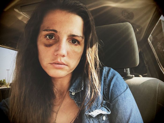 Portrait of woman suffering from violence in car