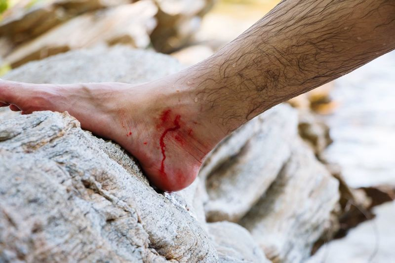 Leg ulcer Leg Leg Ulcer Human Leg Body Part Human Body Part Real People One Person Low Section Day barefoot Human Foot Nature Men Close-up Unrecognizable Person Physical Injury Land Lifestyles Focus On Foreground Outdoors Human Hand Finger